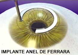 anel2