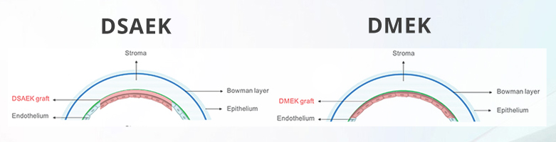 DMEK-blogpost1